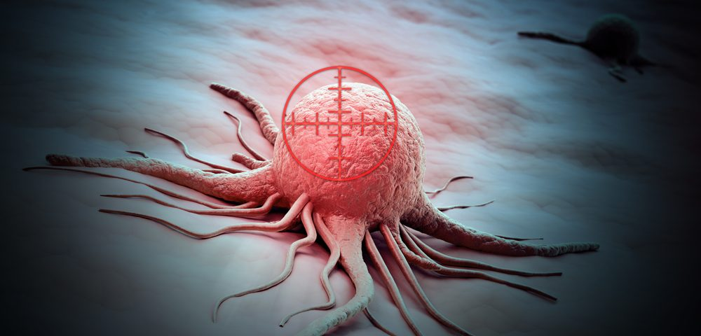 Potential Therapeutic Target Identified to Fight Metastasis in Ovarian Cancer