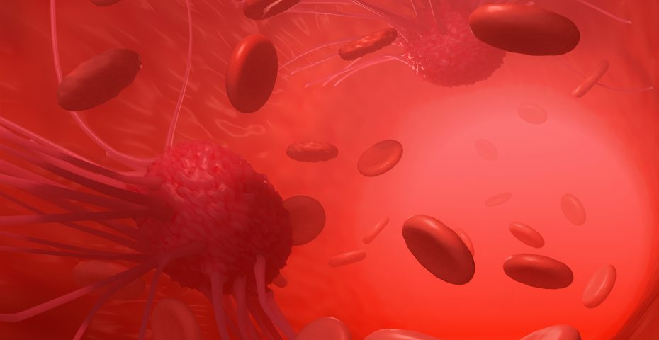 Protein Seen as Hub for Spread of Ovarian Cancer May Point Way to Limiting Metastasis