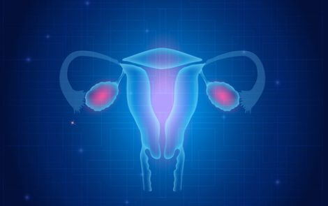 New Sensor Detects Ovarian Cancer in Noninvasive Manner in Mice, Study Shows