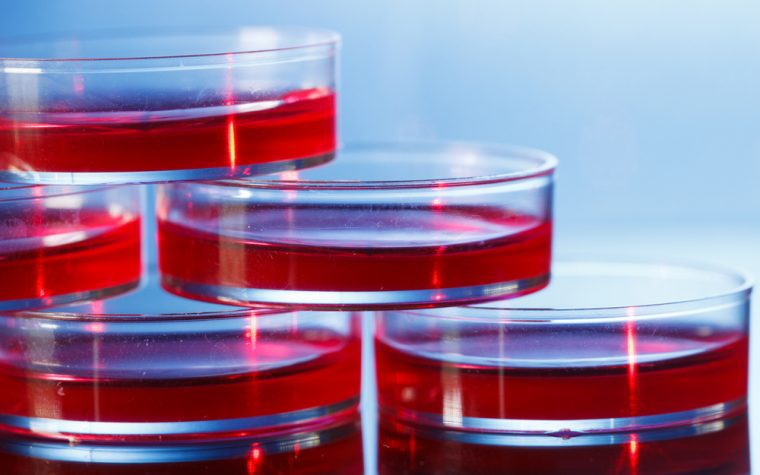 Masitinib Counteracts Resistance to Ovarian Cancer Therapy in Cell Cultures