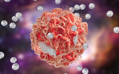 Nami Developing Targeted Nanoparticle Therapy for Advanced Forms of Ovarian Cancer