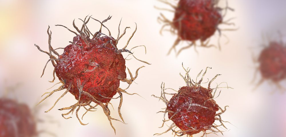 Aivita Launches Phase 2 Trial of Dendritic Cell Immunotherapy for Ovarian Cancer