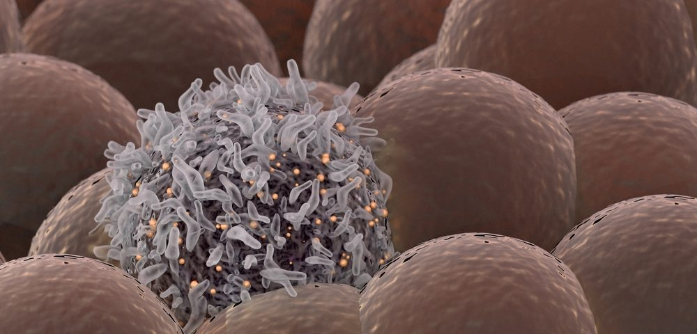 Compounds Found to Reverse Chemotherapy Resistance in Ovarian Cancer in Lab Tests