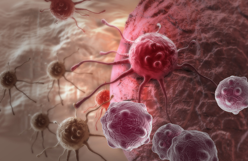 FATE-NK100 Shows Signs of Tumor Reduction in First Ovarian Cancer Patients in Phase 1 Trial