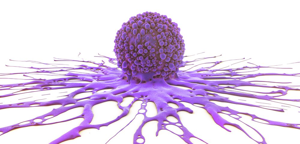 Blocking Glutamine Metabolism May Help Combat OCCC Tumors
